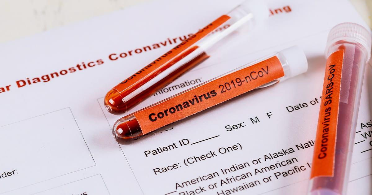 Coronavirus in vials at a hospital.